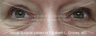 After Blepharoplasty