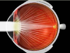 Eye with cataract, light scatters and does not focus on the retina.
