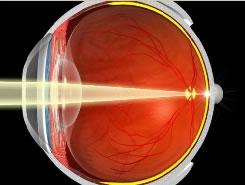 Eye without cataract, light focuses on retina.