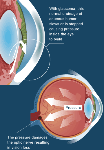 Glaucoma Illustration